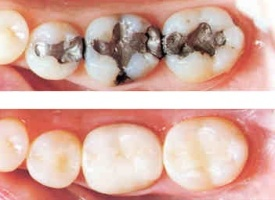 Amalgam replaced with composite fillings