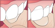 An illustration of correct flossing technique